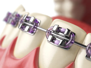 braces - ortho treatment