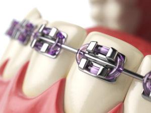 braces - ortho treatment