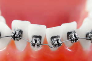 ortho treatment